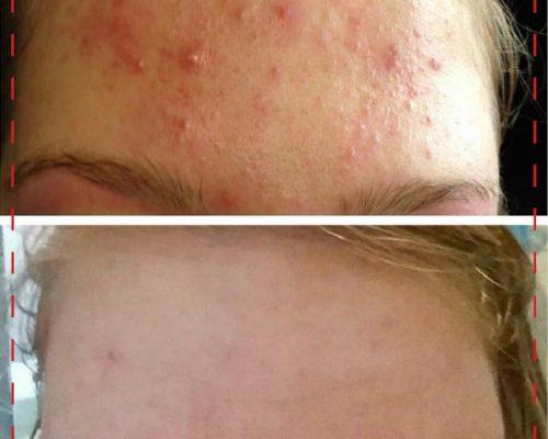 BBK_gezichtbehandelingen-jeugdbehandeling